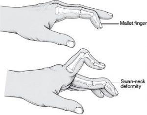 mallet-finger-vs-swan-neck-deformity