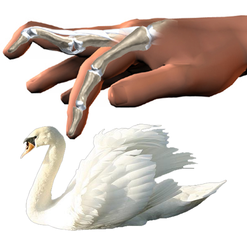 swan-neck-deformity-causes-signs-treatments